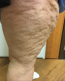 Vein Surgery Patient - Before and After, Atlanta Vein Specialists